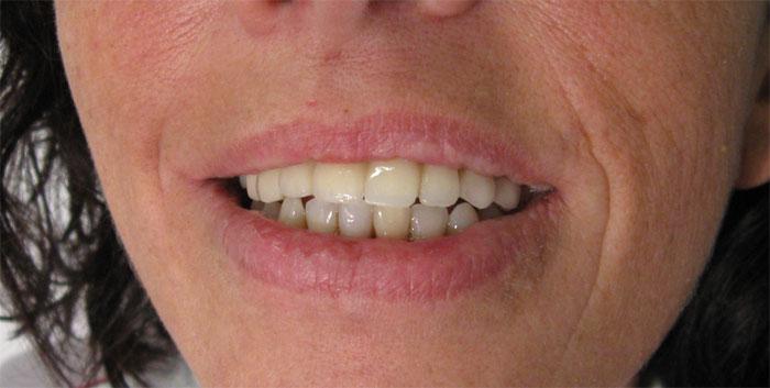 Bridge sur dents naturelles
