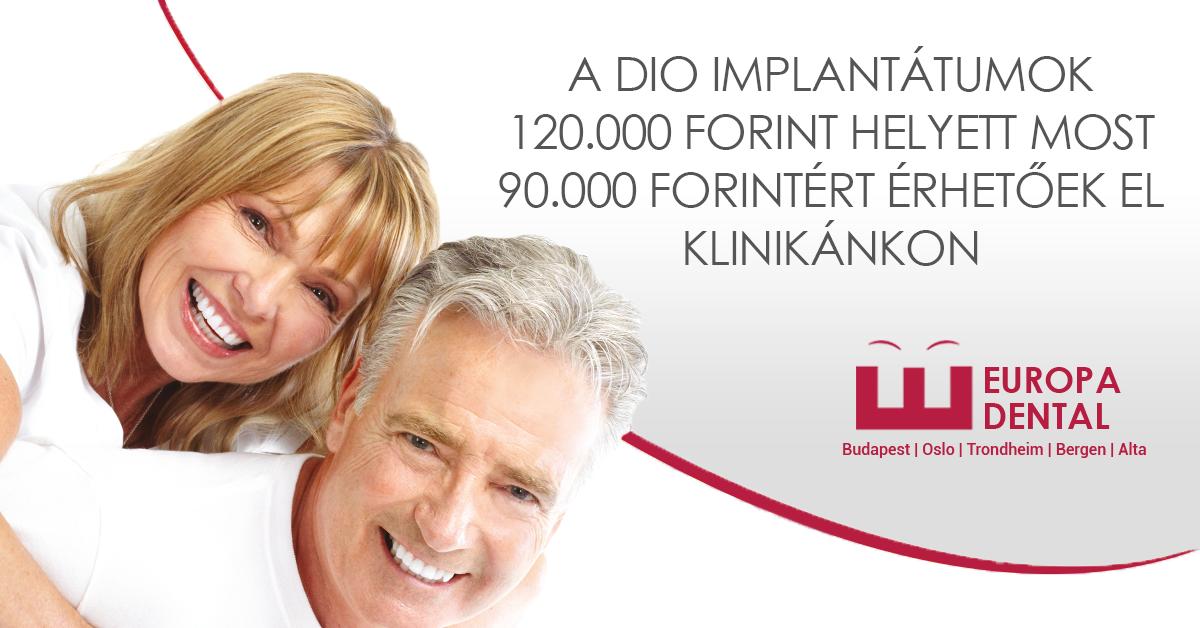 Dio implatátumok kedvező árakon az Europa Dental fogászati rendelőben